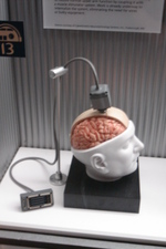 Braingate_2